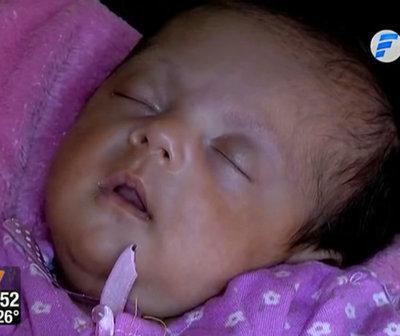 Beba sometida a operación intrauterina fue dada de alta