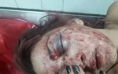 |Video| Joven internada tras ser golpeada brutalmente por un grupo de mujeres a la salida de una discoteca en Buenos Aires