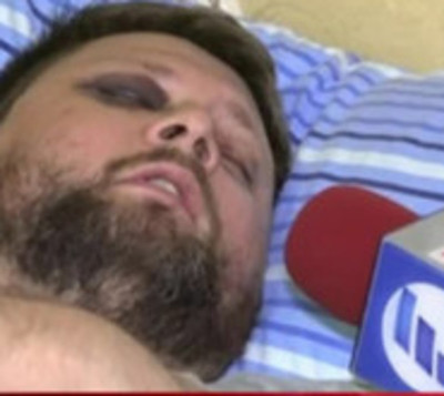 Habla víctima que fue atacado por una turba de motociclistas