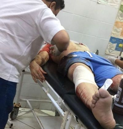 Dos fallecidos y un futbolista herido durante atentado en Capitán Bado