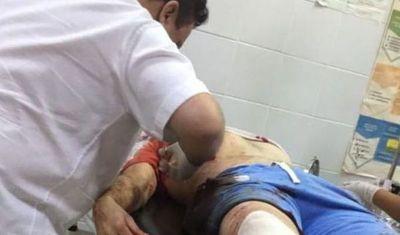 Dos fallecidos y un herido en atentado en Cap. Bado