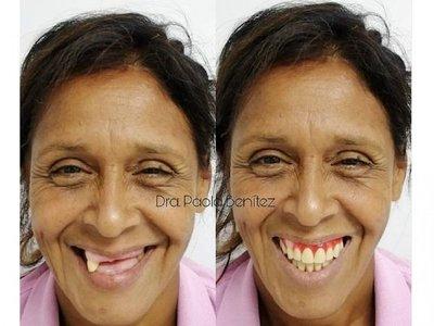 """""""Mi novio está feliz, ya tengo mis dientes"""""""