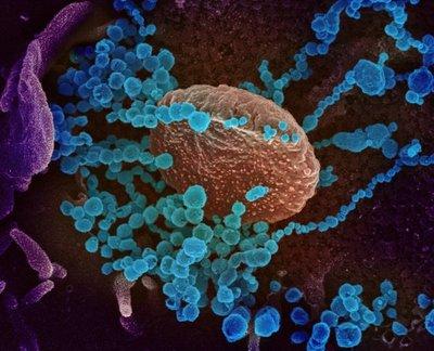 Internacionales Aumentan los casos de coronavirus en América Latina
