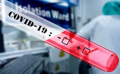 HOY / Salud da vía libre a laboratorios privados para realizar test de coronavirus