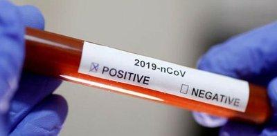 Coronavirus: cifra de casos actualmente llega a 200 mil en todo el mundo