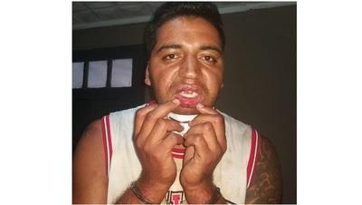 Fiscalía verifica supuesta tortura policial a detenido por incumplir cuarentena
