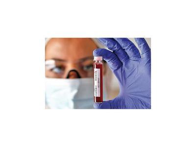 Laboratorio francés comercializará test rápido de Covid-19
