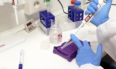 Hospital italiano prueba en pacientes con COVID fármacos contra malaria y VIH