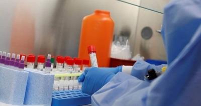 HOY / COVID-19: En un mes Salud procesó 1078 muestras, cantidad que debería ser diaria para conocer cifra real de casos