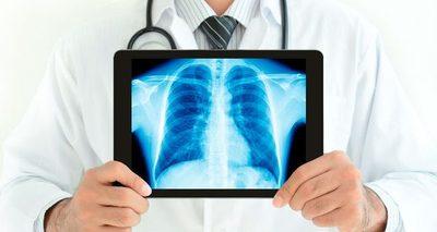 Especialistas ofrecen estudios gratuitos y remotos para pacientes con COVID-19
