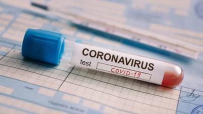 COVID-19: Alrededor del 60% de la población paraguaya se infectará de coronavirus, según estimaciones