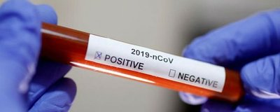 Un fármaco antiparasitario que se vende en todo el mundo podría eliminar al coronavirus en 48 horas