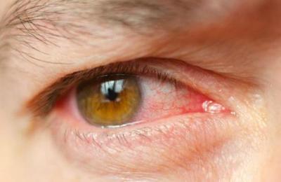 El primer síntoma del coronavirus puede ser una conjuntivitis