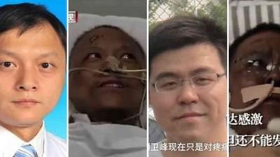 Extraño cambio de Color en la Piel de dos Médicos que tuvieron Coronavirus en Wuhan