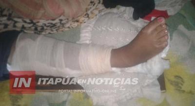 SUFRIÓ UN ACCIDENTE EN SU CASA Y HACE 2 MESES ESTÁ POSTRADA EN EL HRE AGUARDANDO OPERARSE