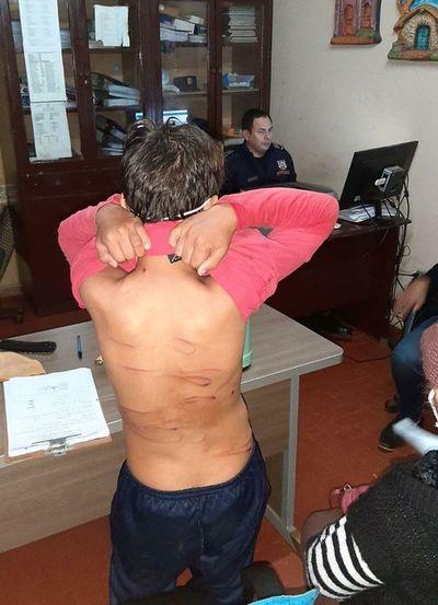 Menor de 13 años fue golpeado salvajemente por su hermano de 21