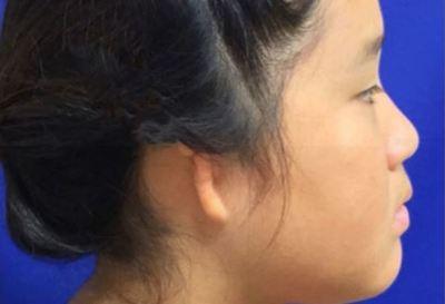 """Hay """"un después"""" en Paraguay para los pacientes con microtia gracias a la gestión de un grupo de padres"""
