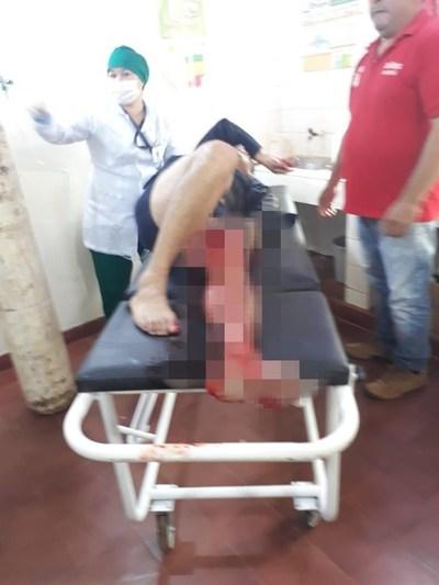 Hieren a policía que rescató a niño del Ycua Bolaños