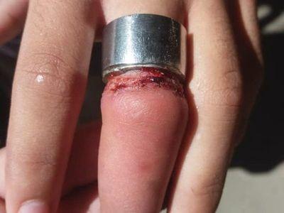 Bomberos le salvaron el dedo a un niño