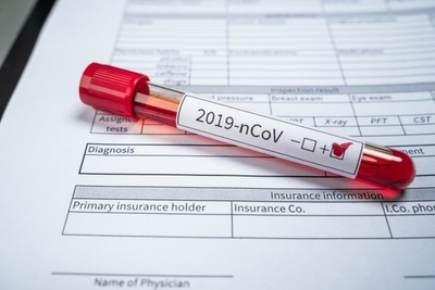 """Pacientes con alta carga viral transmiten el coronavirus como si fuera """"pelota tata"""""""