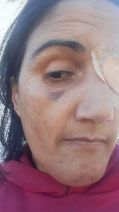 Una mujer con ceguera denuncia agresión y discriminación en juzgado de J. Augusto Saldivar.