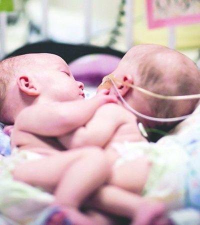 Papás de los bebés siameses aceptaron la operación